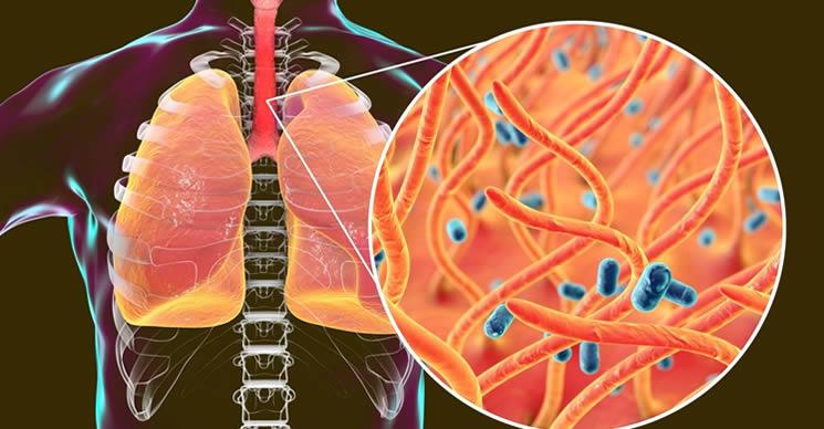 alimenti-che-indeboliscono-il-sistema-immunitario