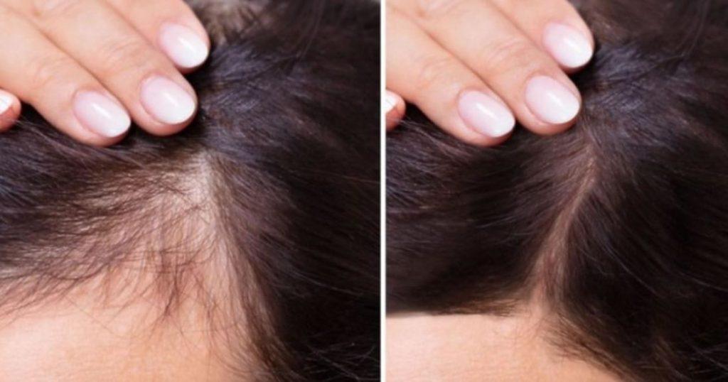 siero-notturno-ricrescita-capelli-1100x578